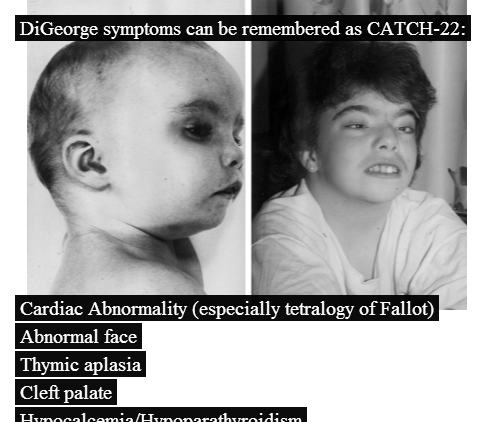 digeorge syndrome 22q112 deletion syndrome is a genetic disorder that can cause many health problems these problems may range from heart defects and developmental delays to seizures.
