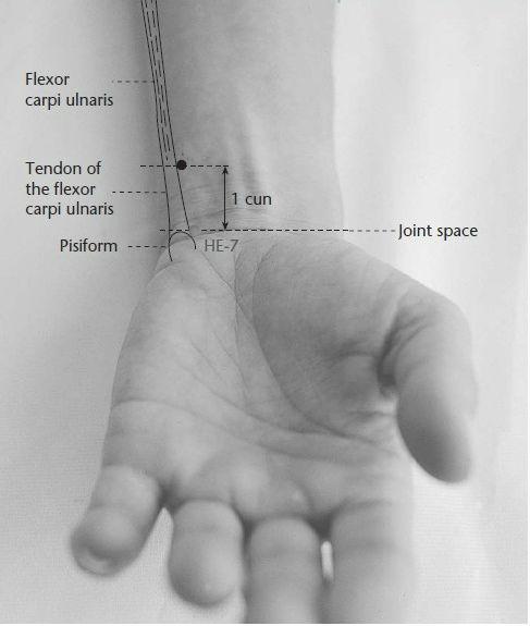Level 5 - Acupuncture points (upper ext… - Memrise