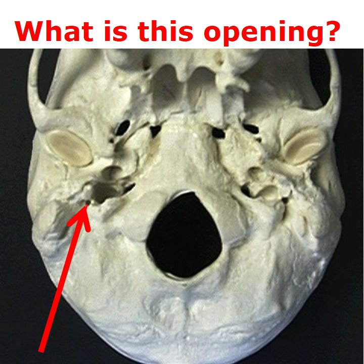 Jugular Notch Occipital Bone Level 17 - Human...