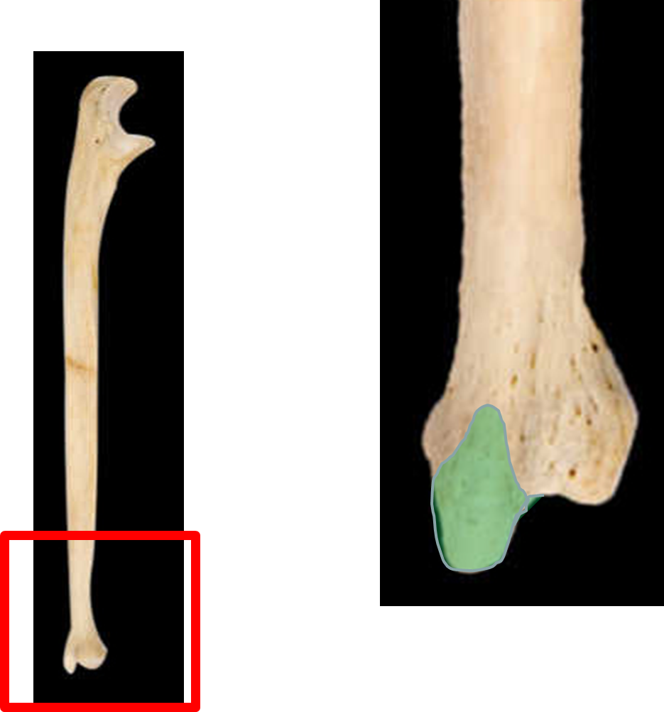 Dorable Ulnar Styloid Anatomy Pictures Human Anatomy Images