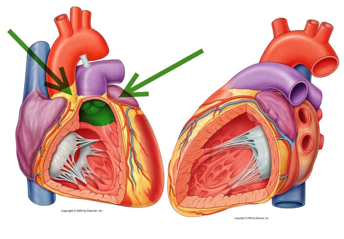 conus arteriosus | free here, Human Body